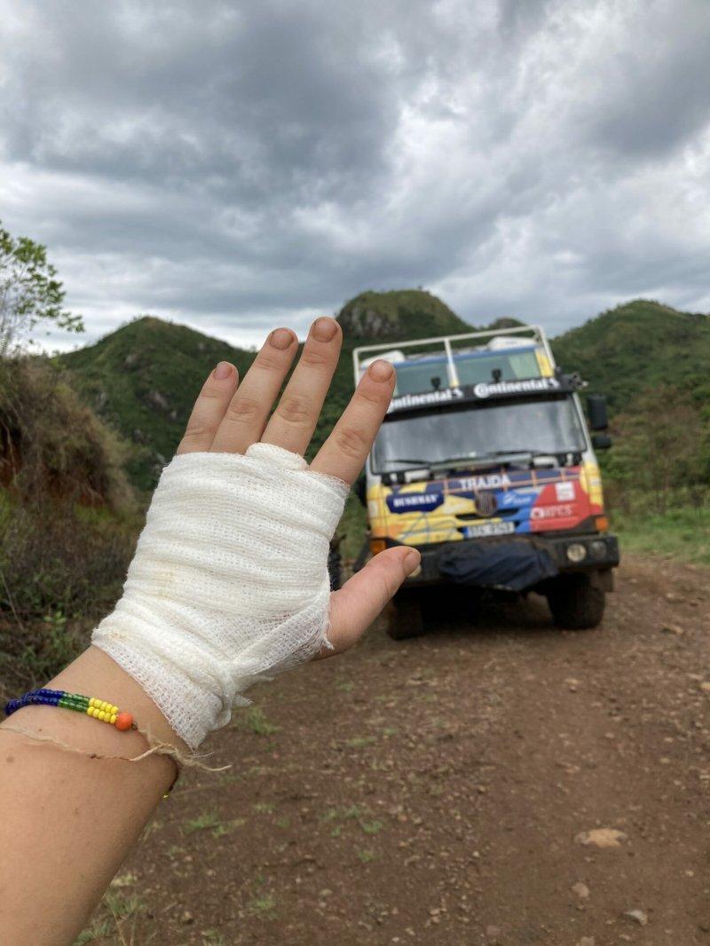 Trajda vykopána a ruka je už také v pořádku. /Etiopie 2021